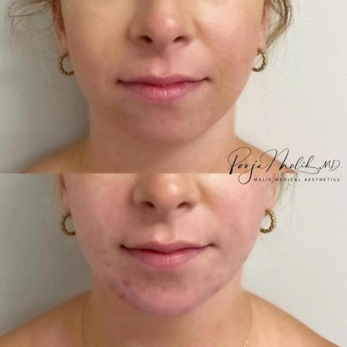 chin-filler-front