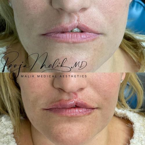 cleft-lip