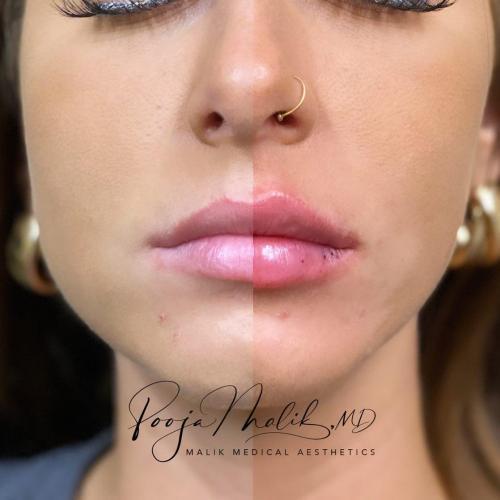 half-and-half-lip