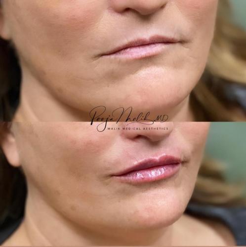 lips-4