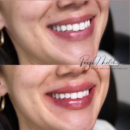 lips-smiling