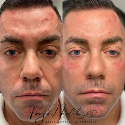 male-full-face