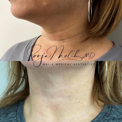 neck-lines-2