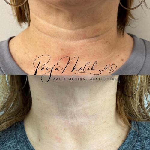 neck-lines
